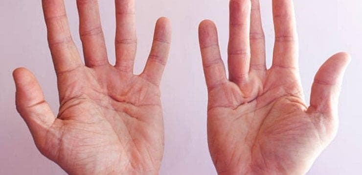 hand exercises to prevent contractures